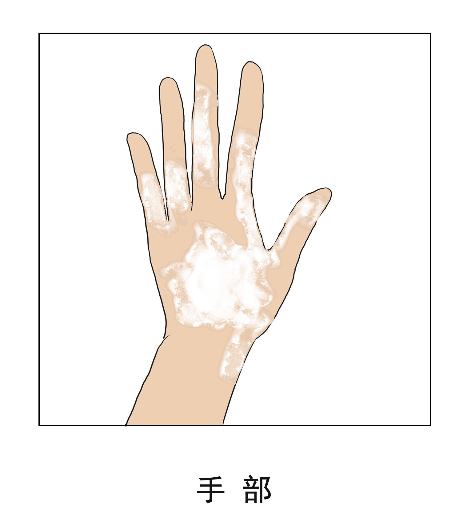 昆明白癜风正规医院:手部白癜风为什么容易扩散